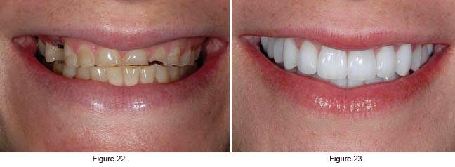 Bulimia Teeth
