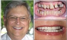 Missing and Misaligned Teeth