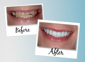 Collegeville PA Cosmetic Dentists offers patients a Free