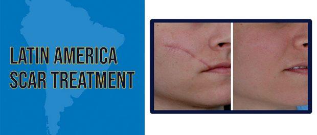 Latin America Scar Treatment Market