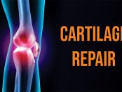 Cartilage Repair Market