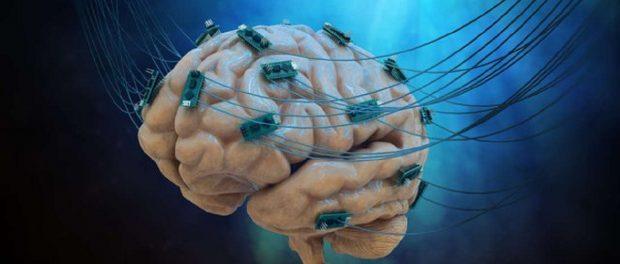 Neuroprosthetics Market
