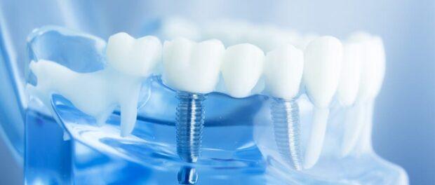 Dental Impression Systems Market