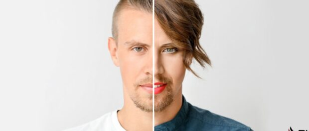 transgender hair transplant- Beverly Hills Hair Restoration Offers MTF and FTM hair transplant with their Advanced Hair Restoration Techniques